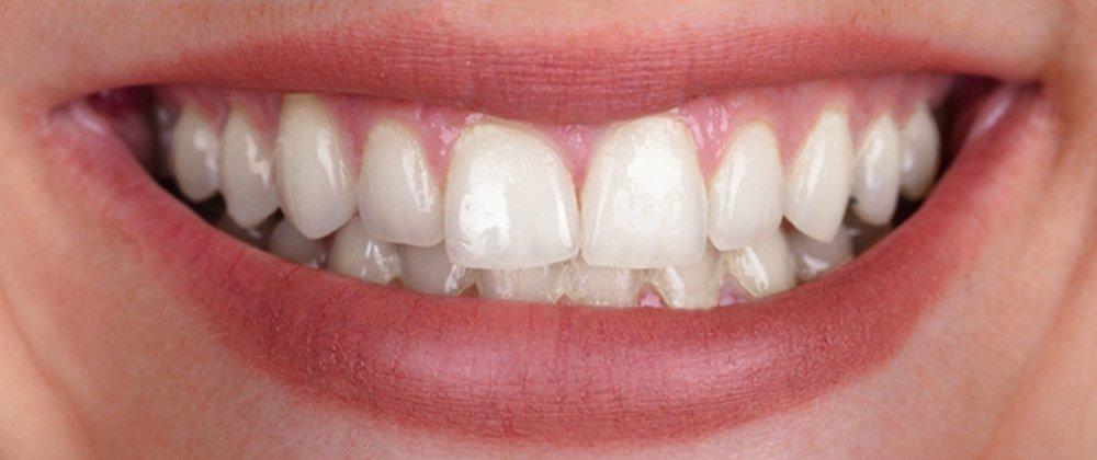 oral-hyg2